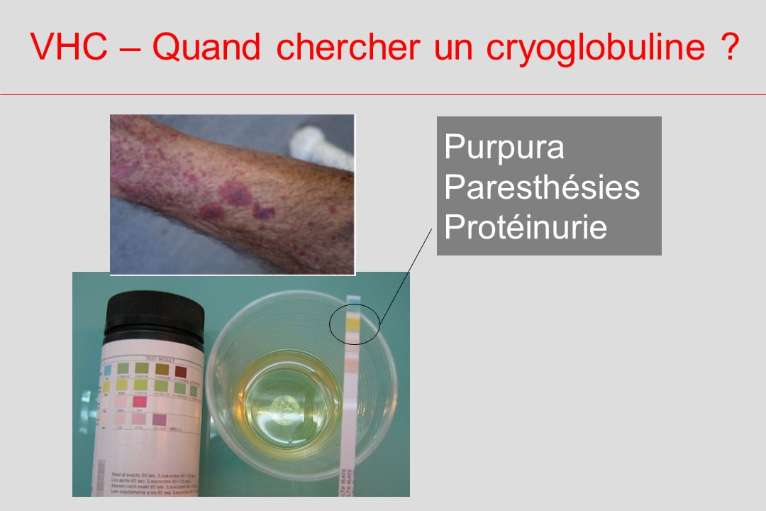 VHC – Quand chercher un cryoglobuline ? Protéinurie Purpura Paresthésies