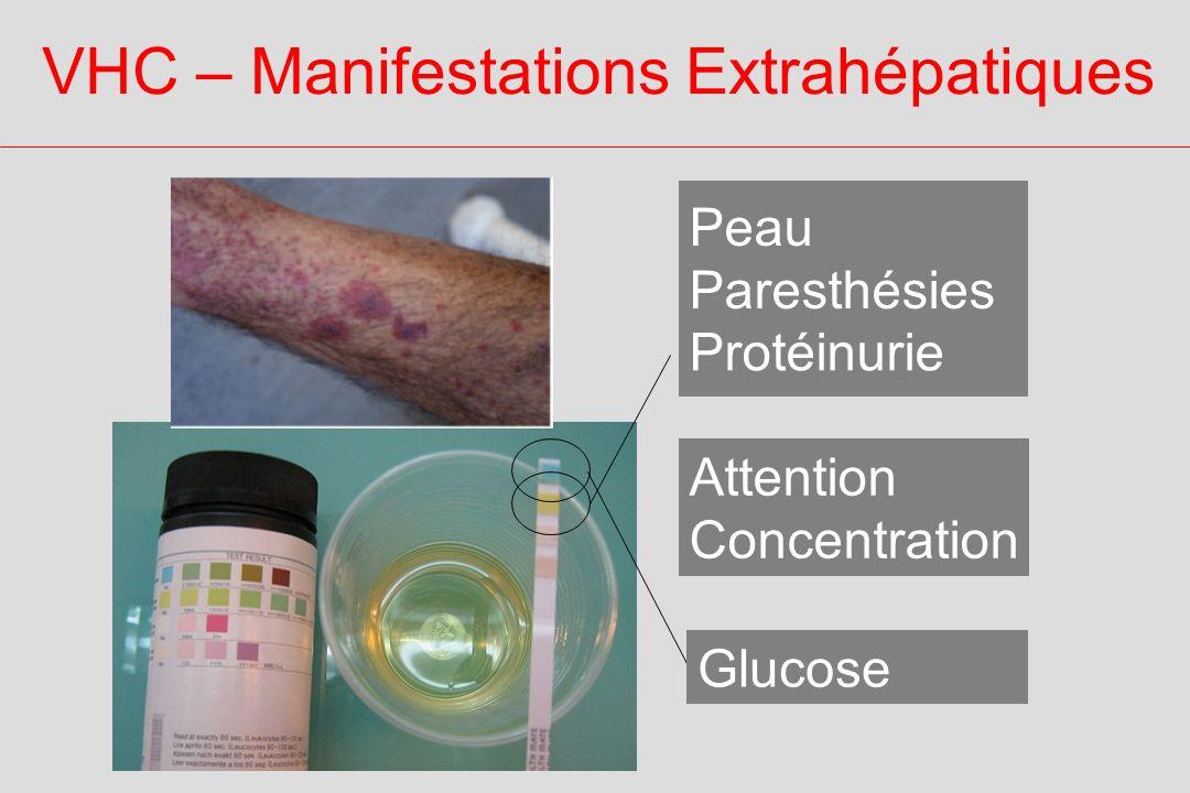 VHC – Manifestations Extrahépatiques Glucose Protéinurie Peau Paresthésies Attention Concentration