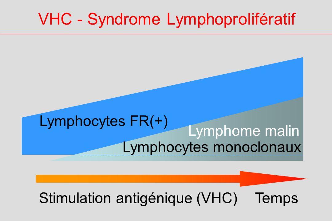 VHC - Syndrome Lymphoprolifératif Temps Lymphocytes monoclonaux Stimulation antigénique (VHC) Lymphocytes FR(+) Lymphome malin