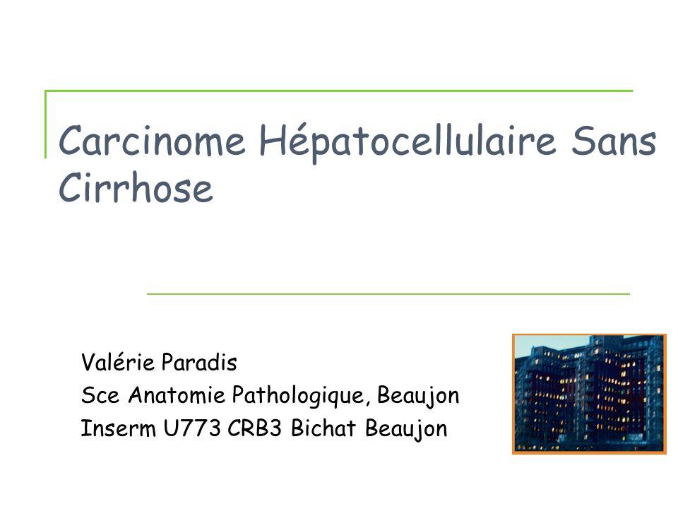 Carcinome Hépatocellulaire Sans Cirrhose Valérie Paradis Sce Anatomie Pathologique, Beaujon Inserm U773 CRB3 Bichat Beaujon