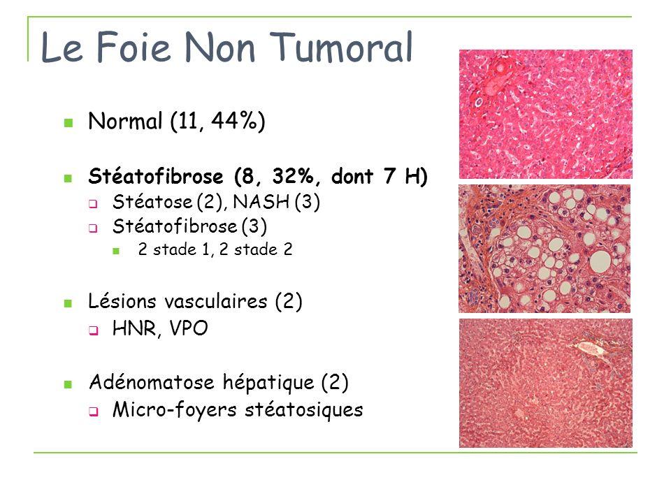 Le Foie Non Tumoral Normal (11, 44%) Stéatofibrose (8, 32%, dont 7 H) Stéatose (2), NASH (3) Stéatofibrose (3) 2 stade 1, 2 stade 2 Lésions vasculaire