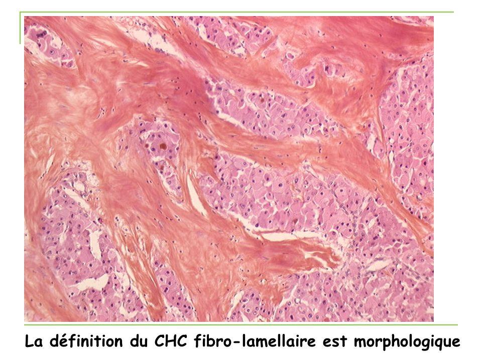 La définition du CHC fibro-lamellaire est morphologique