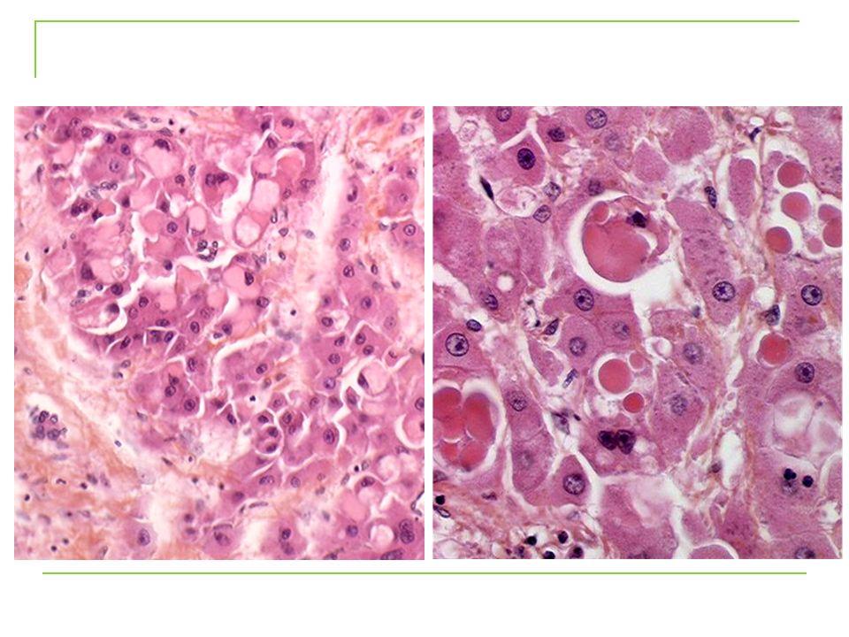 Mode de Transformation Maligne Macroscopique (7 cases, 28%) Glypican-3 Microscopique (18 cases, 72%)