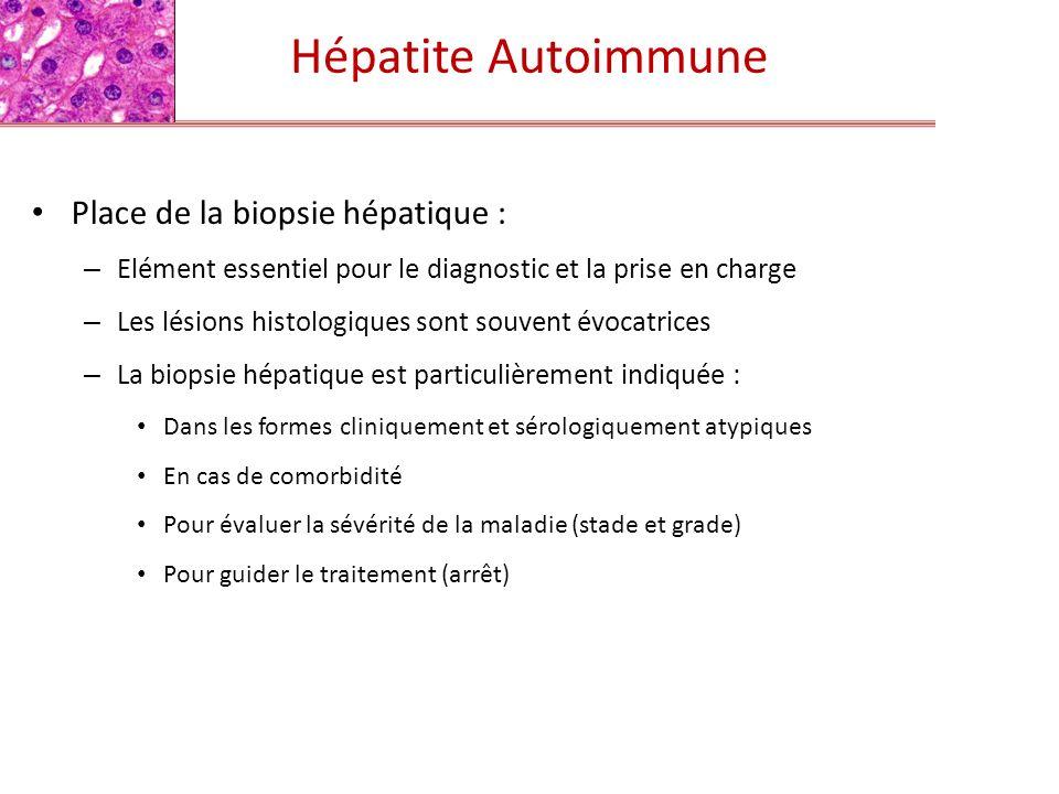Hépatite Autoimmune Place de la biopsie hépatique : – Elément essentiel pour le diagnostic et la prise en charge – Les lésions histologiques sont souv