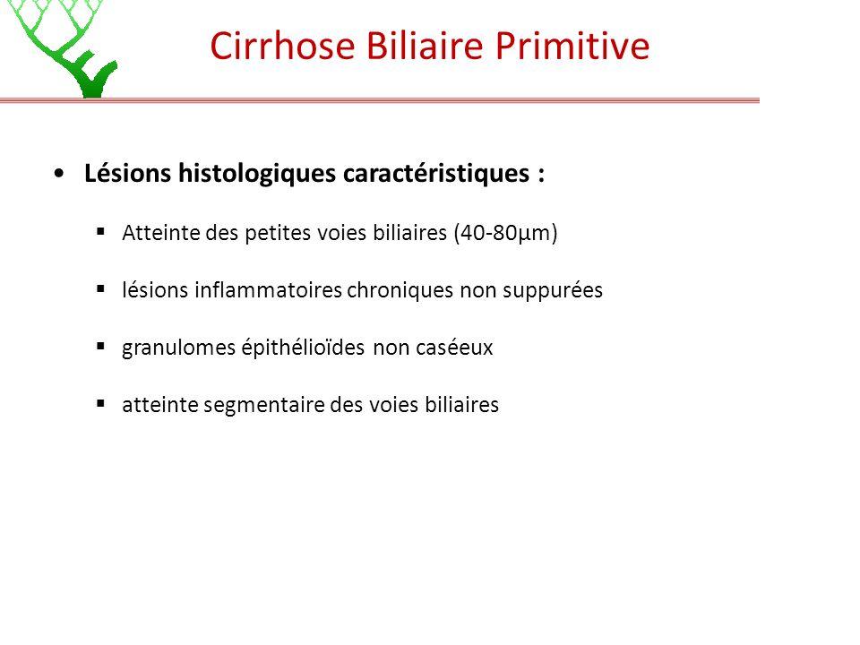 Cirrhose Biliaire Primitive Lésions histologiques caractéristiques : Atteinte des petites voies biliaires (40-80µm) lésions inflammatoires chroniques