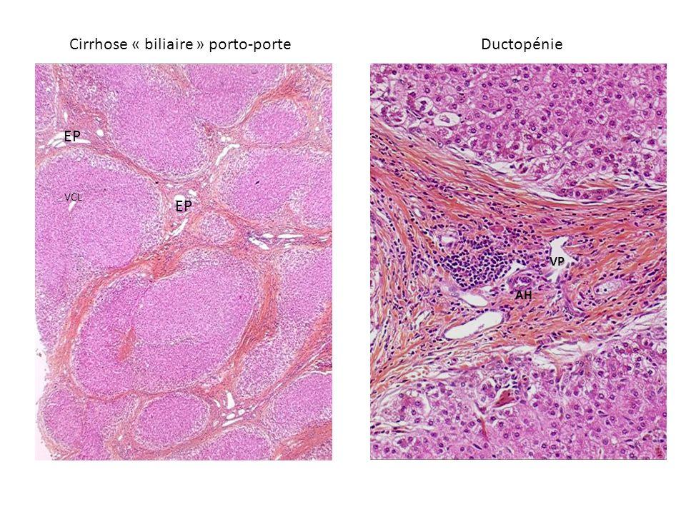 Cirrhose « biliaire » porto-porteDuctopénie EP VCL AH VP