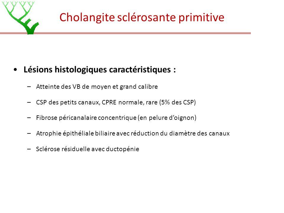 Lésions histologiques caractéristiques : –Atteinte des VB de moyen et grand calibre –CSP des petits canaux, CPRE normale, rare (5% des CSP) –Fibrose p