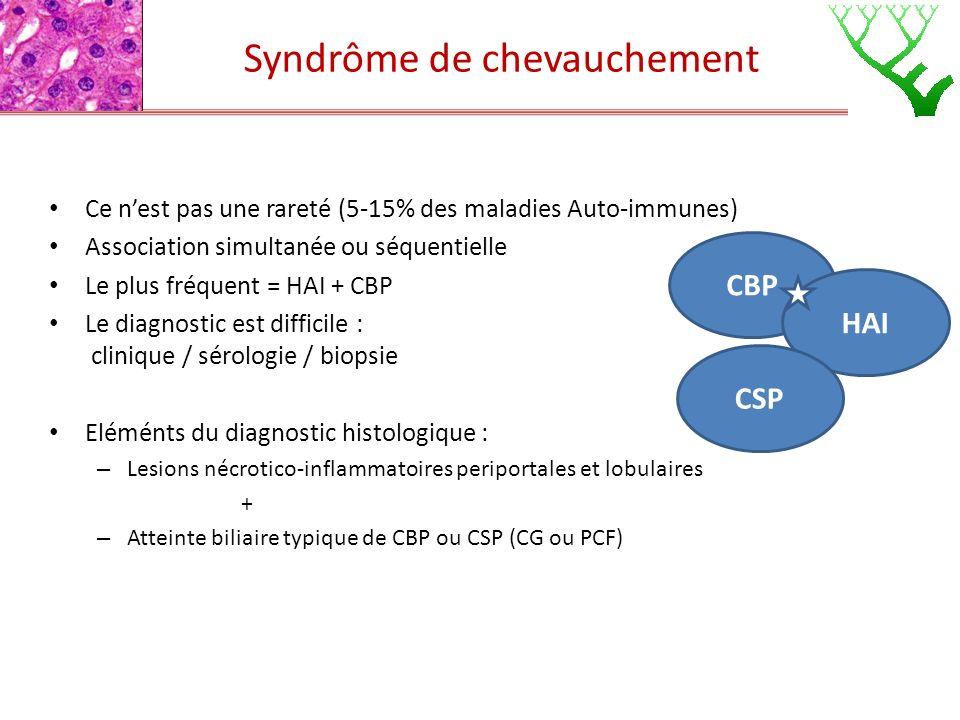 Syndrôme de chevauchement Ce nest pas une rareté (5-15% des maladies Auto-immunes) Association simultanée ou séquentielle Le plus fréquent = HAI + CBP