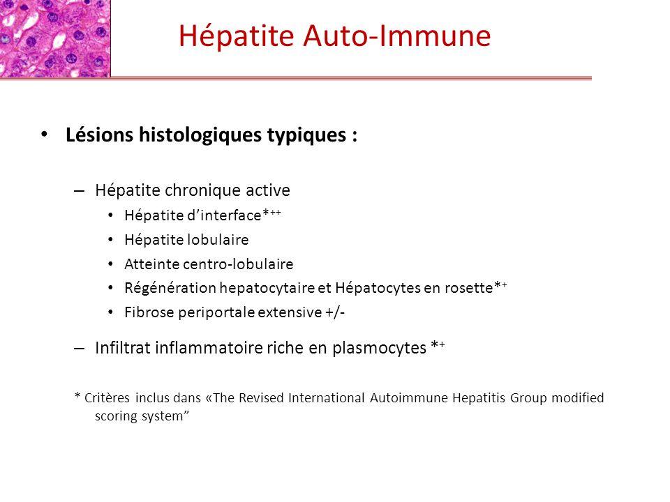 Lésions histologiques typiques : – Hépatite chronique active Hépatite dinterface* ++ Hépatite lobulaire Atteinte centro-lobulaire Régénération hepatoc