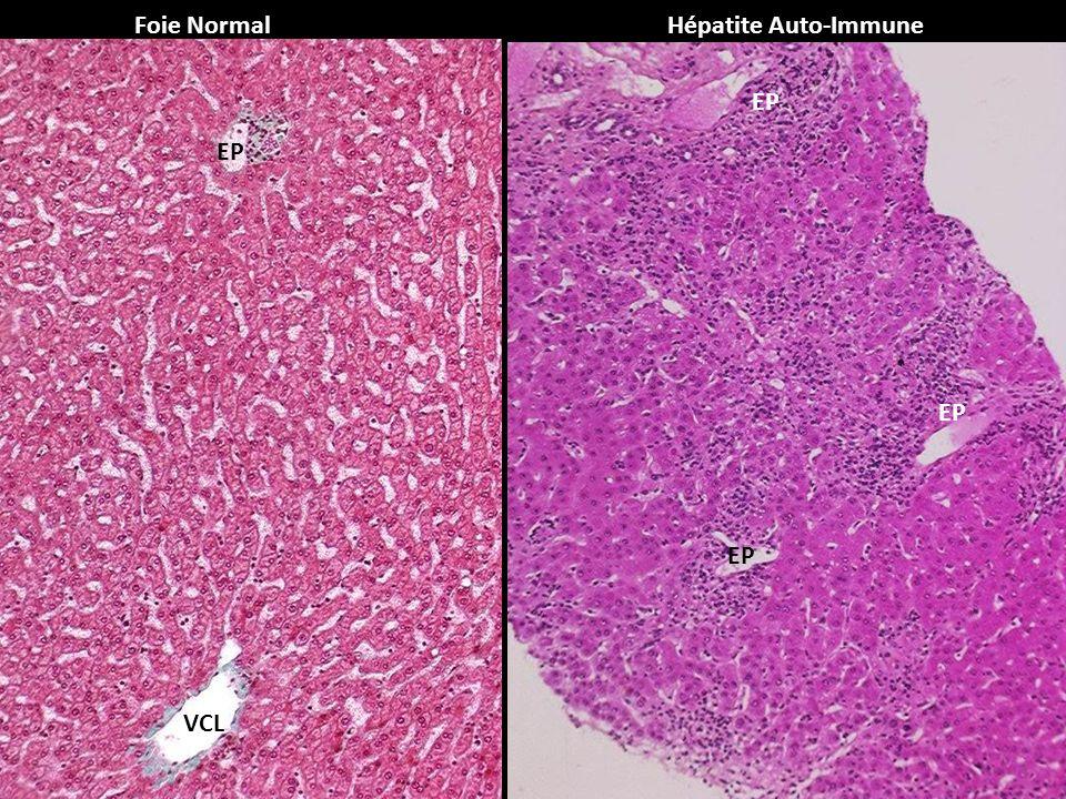 Foie NormalHépatite Auto-Immune EP VCL
