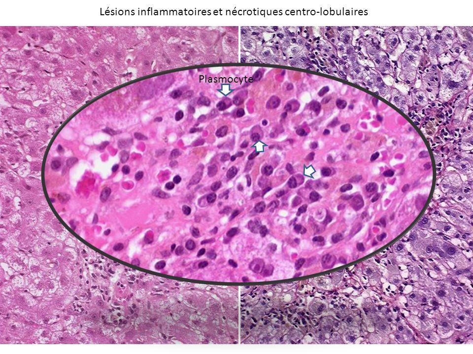 Hépatite Auto-Immune Présentation Histologique typique : – Hépatite chronique active Hépatite dinterface Hépatite lobulaire Atteinte centro-lobulaire Régénération hepatocytaire – Infiltrat inflammatoire riche en plasmocytes Lesions associées inconstantes : – Nécrose en pont porto-centrolobulaire – Cellules géantes multinuclées – Atteinte « collatérale » des canaux biliaires