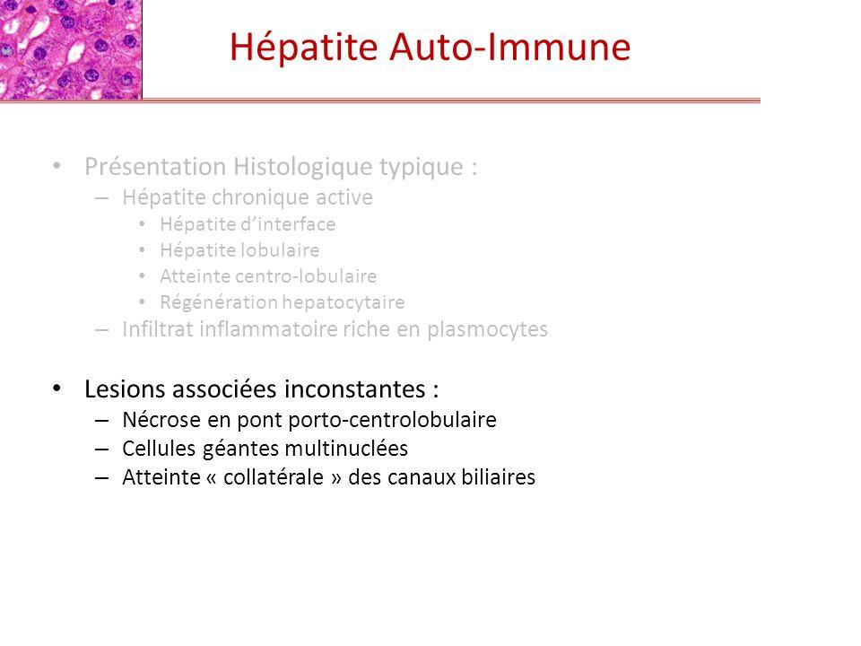 Hépatite Auto-Immune Présentation Histologique typique : – Hépatite chronique active Hépatite dinterface Hépatite lobulaire Atteinte centro-lobulaire