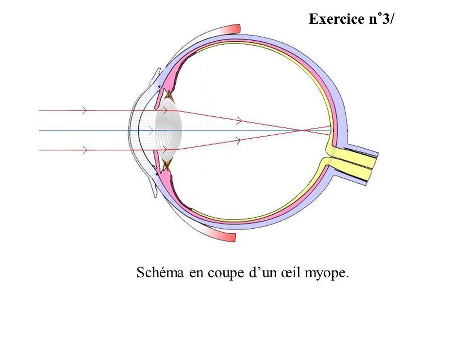Exercice n°3/ Schéma en coupe dun œil myope.