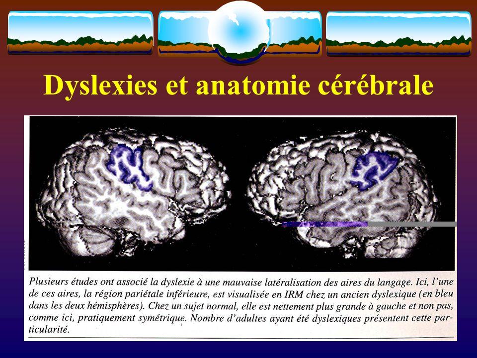 Dyslexies et anatomie cérébrale
