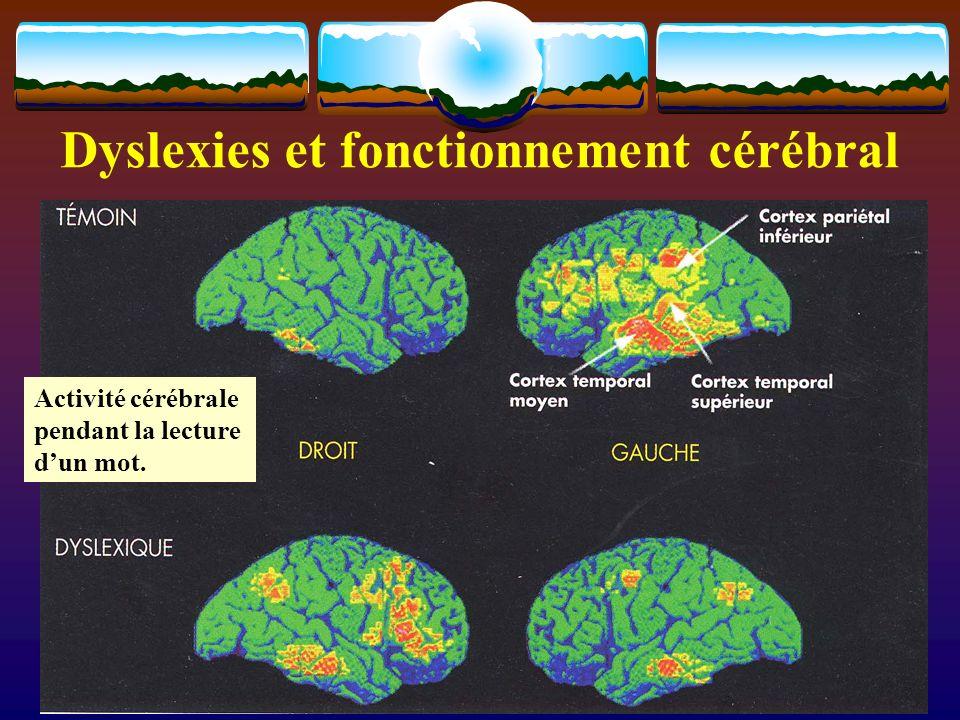 Dyslexies et fonctionnement cérébral Activité cérébrale pendant la lecture dun mot.