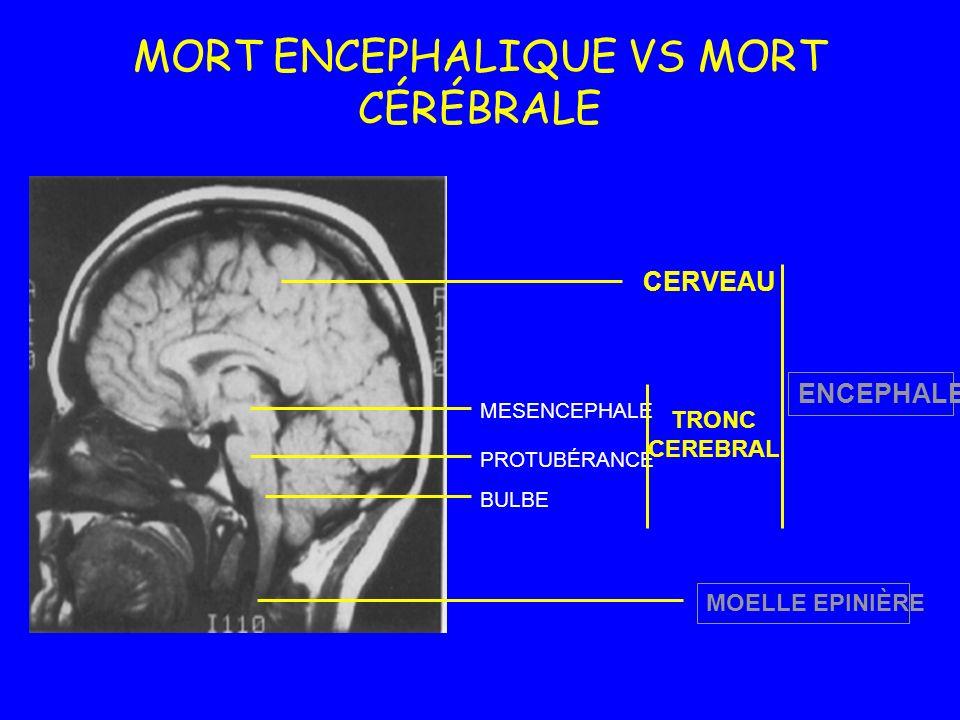 MORT ENCEPHALIQUE VS MORT CÉRÉBRALE MOELLE EPINIÈRE ENCEPHALE MESENCEPHALE PROTUBÉRANCE BULBE CERVEAU TRONC CEREBRAL
