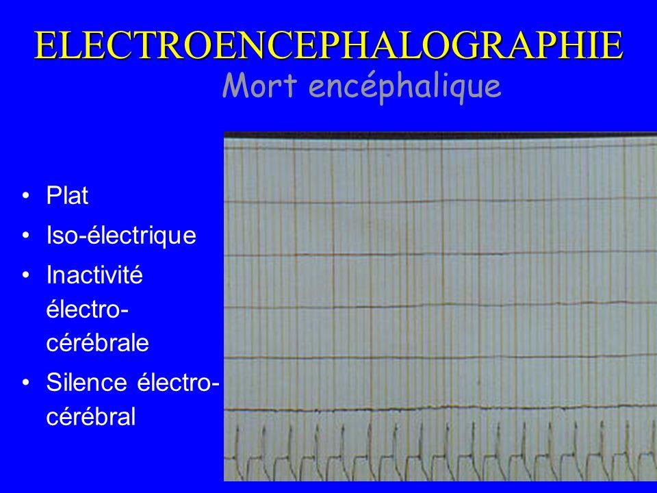 Mort encéphalique ELECTROENCEPHALOGRAPHIE Plat Iso-électrique Inactivité électro- cérébrale Silence électro- cérébral