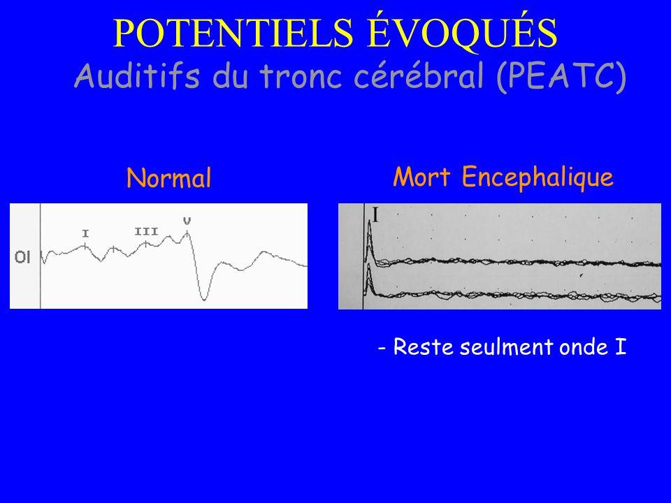 - Reste seulment onde I Mort Encephalique I Normal Auditifs du tronc cérébral (PEATC) POTENTIELS ÉVOQUÉS
