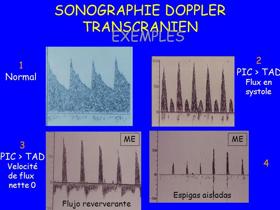 1 Normal 3 PIC > TAD Velocité de flux nette 0 2 PIC > TAD Flux en systole 4 Espigas aisladas Flujo reververante ME SONOGRAPHIE DOPPLER TRANSCRANIEN EX