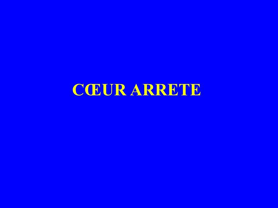 CŒUR ARRETE