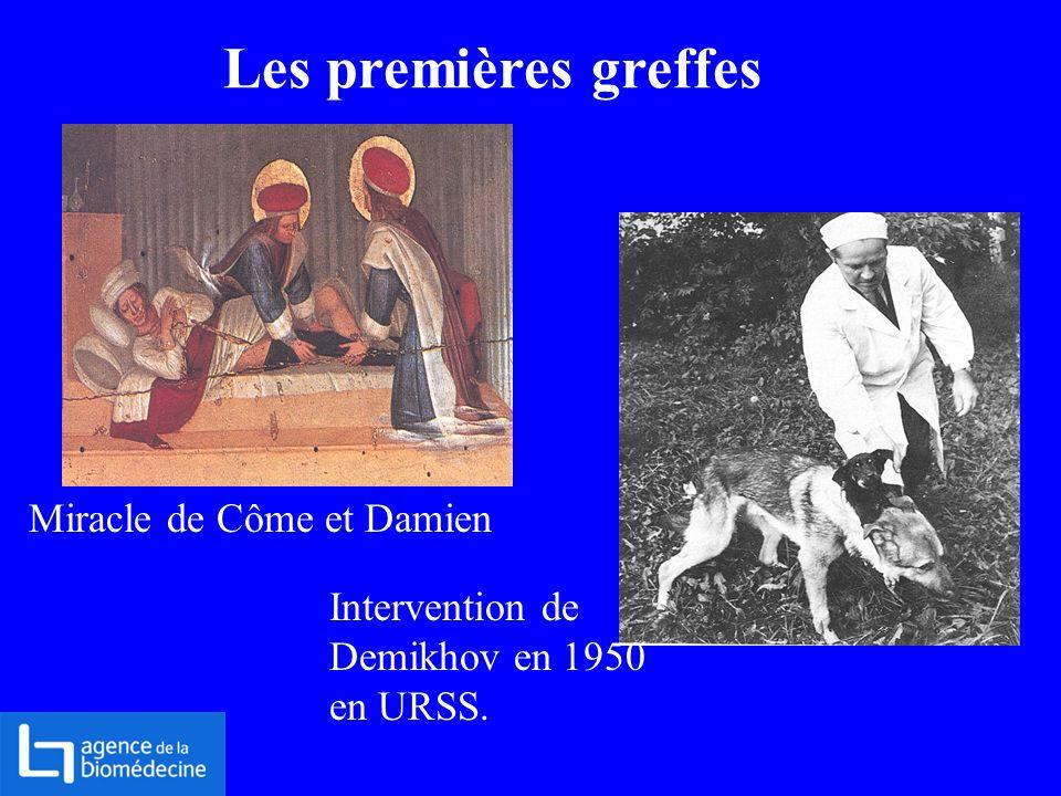 Les premières greffes Miracle de Côme et Damien Intervention de Demikhov en 1950 en URSS.