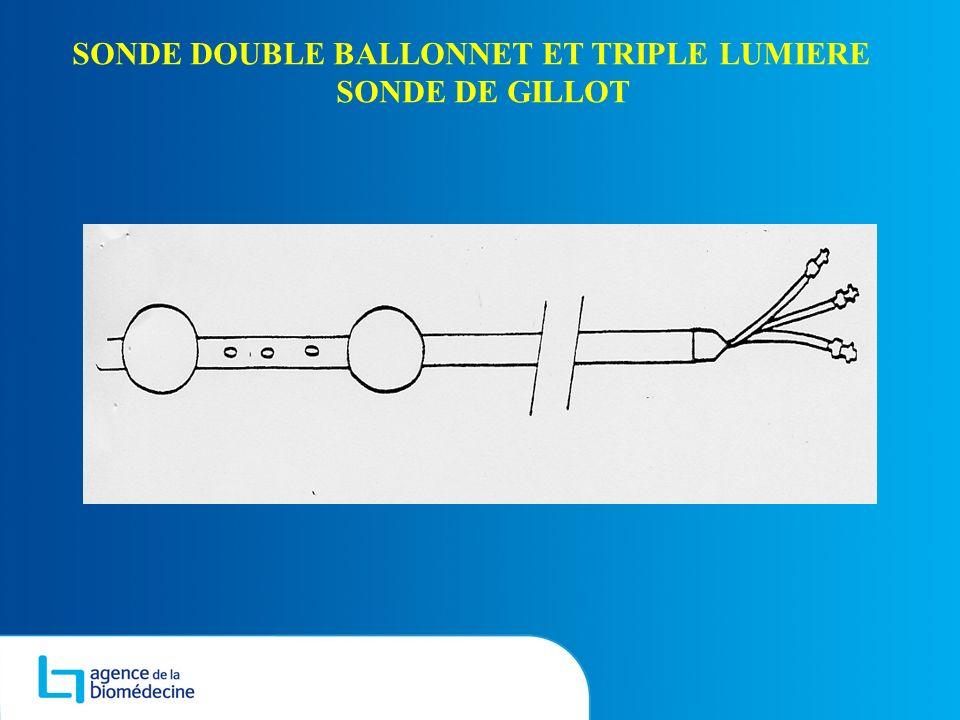 SONDE DOUBLE BALLONNET ET TRIPLE LUMIERE SONDE DE GILLOT