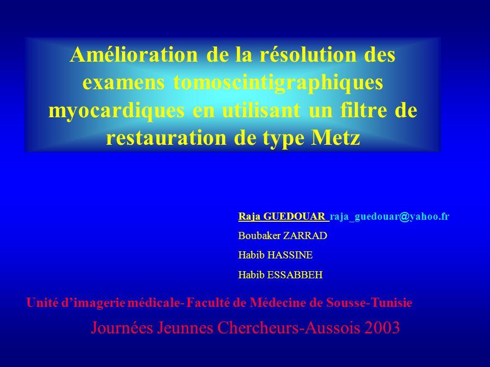Amélioration de la résolution des examens tomoscintigraphiques myocardiques en utilisant un filtre de restauration de type Metz Raja GUEDOUAR raja_gue