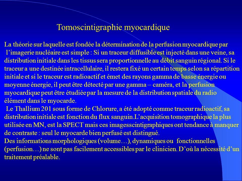Pratique Elaboration dun filtre de Metz pour la restauration des tomoscintigraphies myocardiques Journées Jeunnes Chercheurs-Aussois 2003