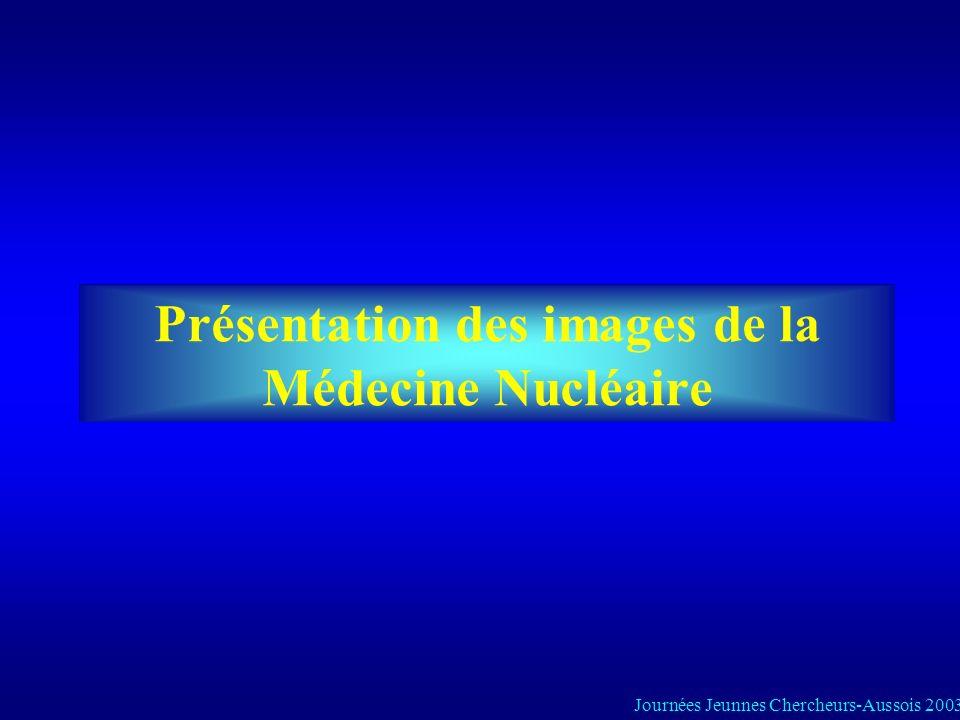 Objectif Mise au point dun filtre de restauration pour les tomoscintigraphies cardiaques applicable en routine dans le service de MN Journées Jeunnes Chercheurs-Aussois 2003 Pratique