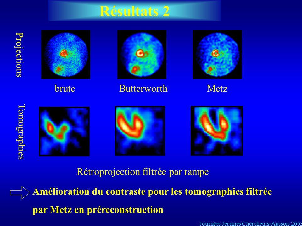Résultats 2 bruteMetzButterworth Projections Tomographies Rétroprojection filtrée par rampe Amélioration du contraste pour les tomographies filtrée pa