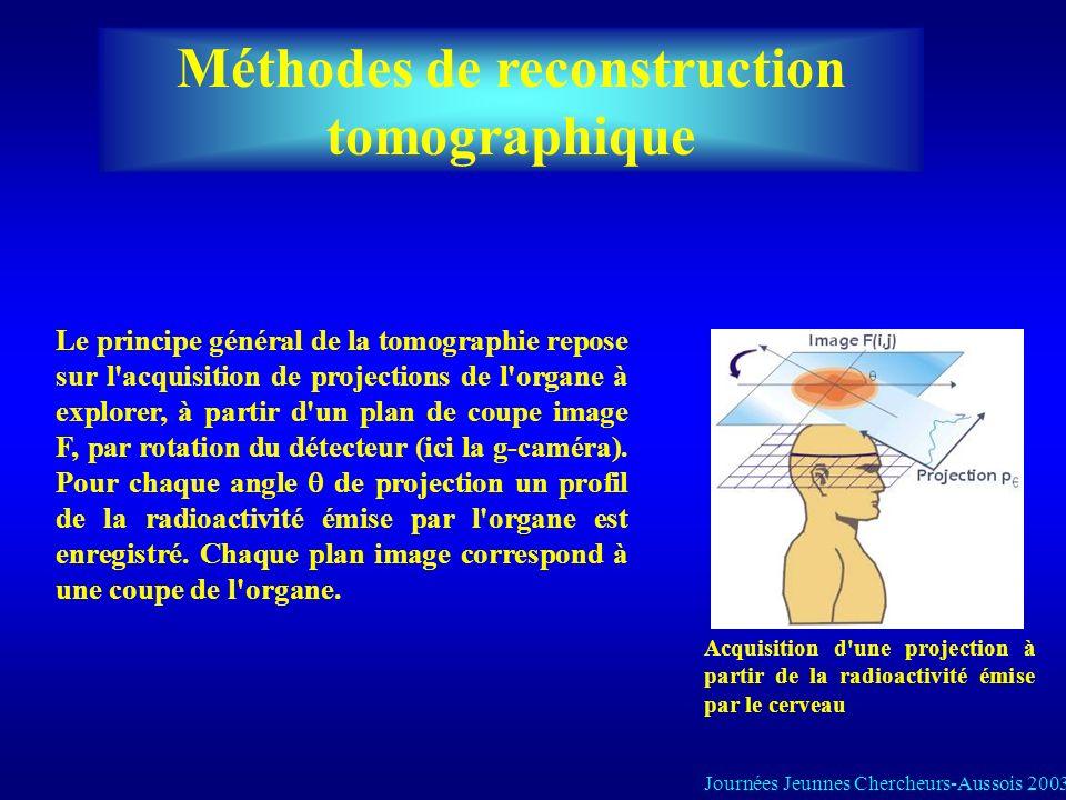 Tomoscintigraphie à photon unique (SPECT) Principe: -injection dun radiotraceur qui a lavantage de se fixer dans un organe specifique -acquisition des photons uniques émises dans la direction perpendiculaire de collimateur -determination de la position demission des photons acquises SPECT: Permet d obtenir une représentation 3D d une distribution radioactive à partir de plusieurs projections acquises autour du patient Le détecteur est animé d un mouvement de rotation autour du patient 360° (cerveau) ou 180° (myocarde) par un le pas angulaire petit.