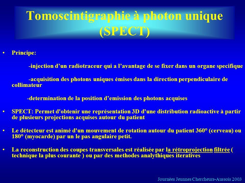 Tomoscintigraphie à photon unique (SPECT) Principe: -injection dun radiotraceur qui a lavantage de se fixer dans un organe specifique -acquisition des