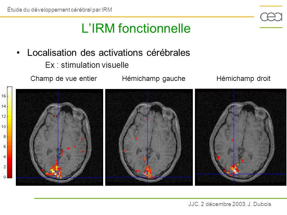 JJC. 2 décembre 2003. J. Dubois Étude du développement cérébral par IRM LIRM fonctionnelle Localisation des activations cérébrales Ex : stimulation vi