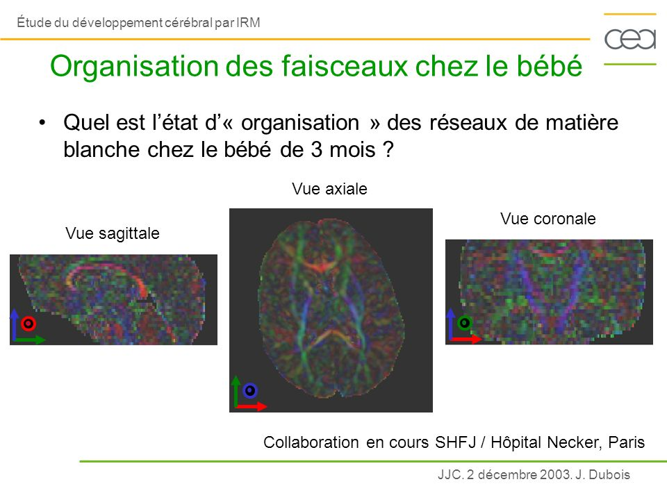 JJC. 2 décembre 2003. J. Dubois Étude du développement cérébral par IRM Organisation des faisceaux chez le bébé Collaboration en cours SHFJ / Hôpital
