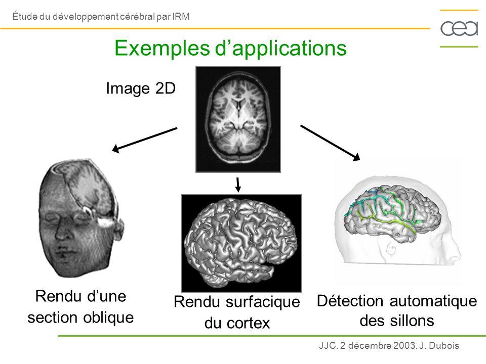 JJC. 2 décembre 2003. J. Dubois Étude du développement cérébral par IRM Exemples dapplications Image 2D Rendu dune section oblique Détection automatiq