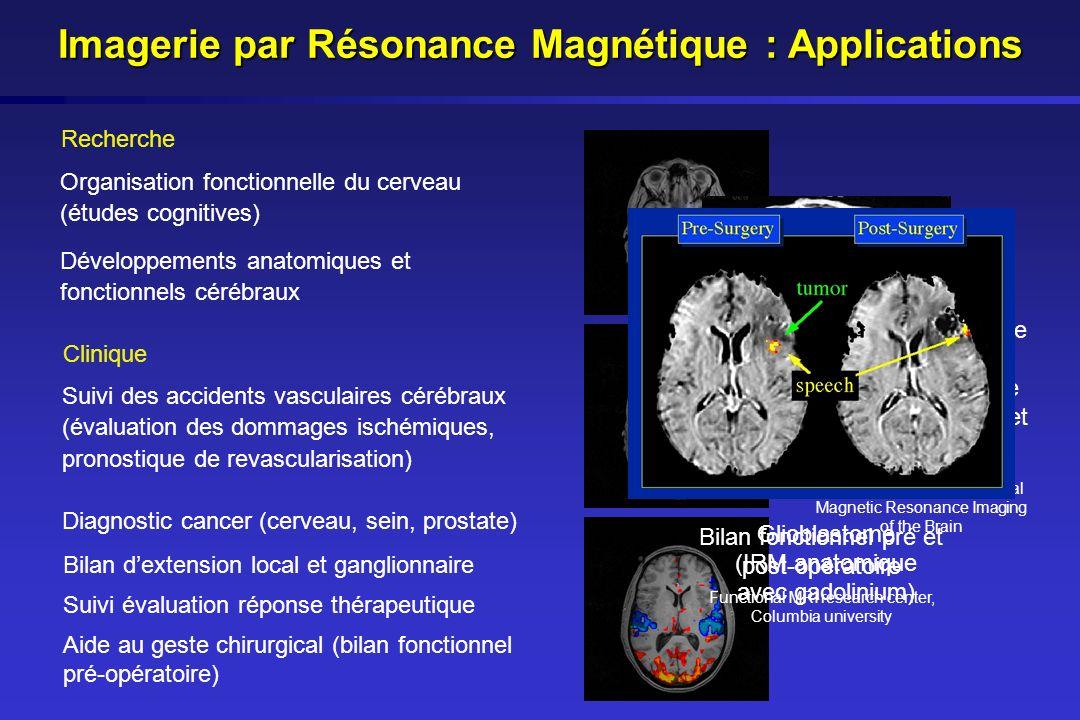 Imagerie par Résonance Magnétique : Applications Activation cérébrale sous stimulation visuelle et auditive (IRM anatomique et fonctionnelle) Oxford C
