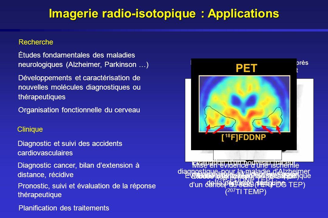 Mise en évidence dune ischémie myocardique à laide dun traceur de la perfusion sanguine ( 207 Tl TEMP) Etudes cognitives ( 18 F-FDG TEP) Evaluation de