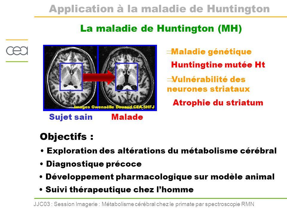 JJC03 : Session Imagerie : Métabolisme cérébral chez le primate par spectroscopie RMN Application à la maladie de Huntington La maladie de Huntington