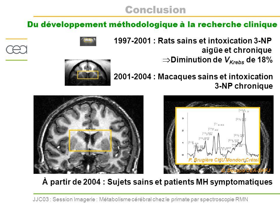 JJC03 : Session Imagerie : Métabolisme cérébral chez le primate par spectroscopie RMN Conclusion Du développement méthodologique à la recherche cliniq