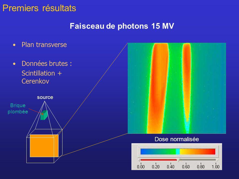 20 Faisceau de photons 15 MV Plan transverse Données brutes : Scintillation + Cerenkov Premiers résultats Brique plombée source Dose normalisée