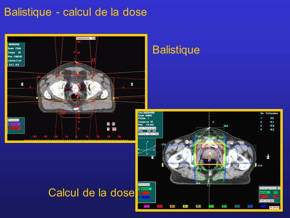 7 Balistique Calcul de la dose Balistique - calcul de la dose