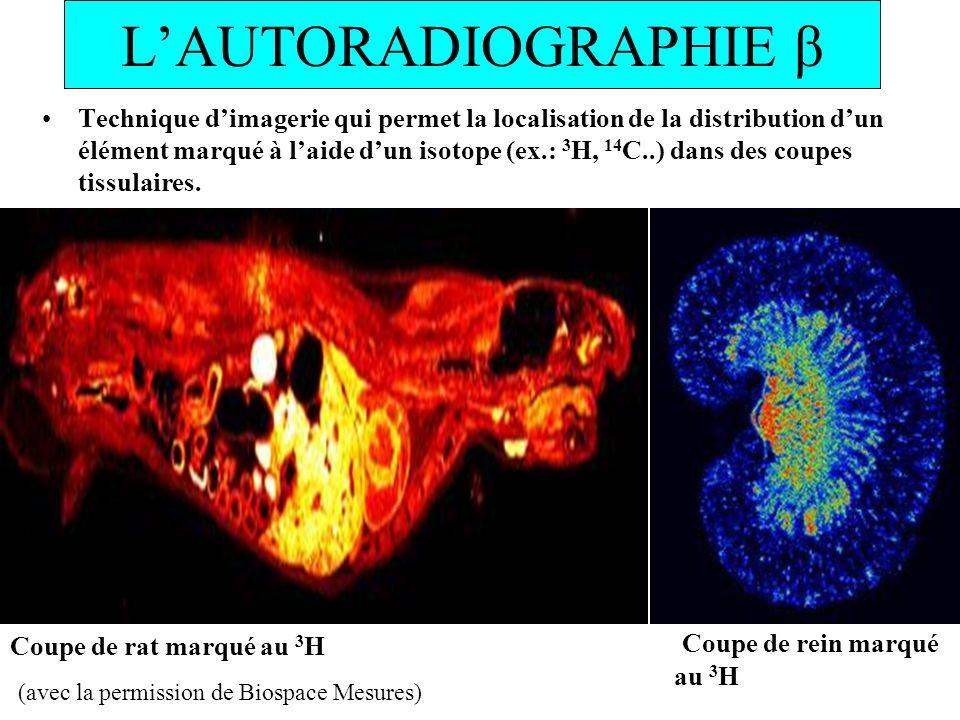 LAUTORADIOGRAPHIE β Technique dimagerie qui permet la localisation de la distribution dun élément marqué à laide dun isotope (ex.: 3 H, 14 C..) dans d