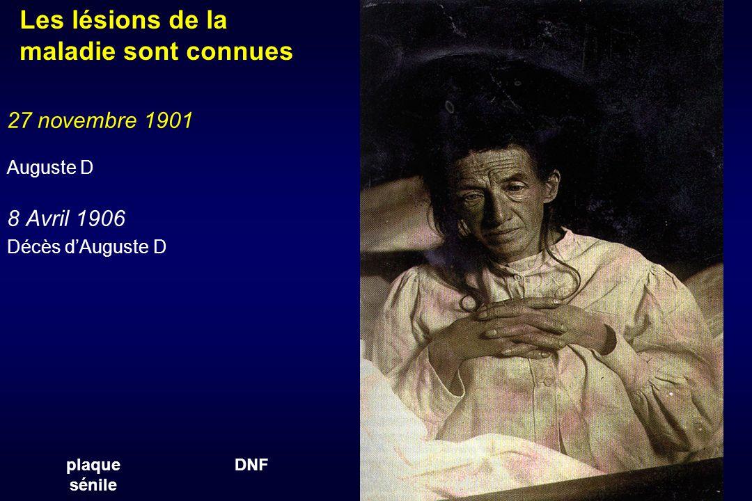 27 novembre 1901 Auguste D 8 Avril 1906 Décès dAuguste D plaque sénile DNF Les lésions de la maladie sont connues