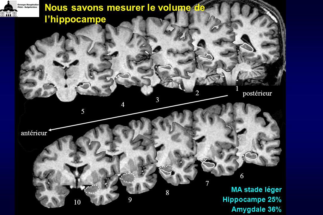 antérieur postérieur 6 7 8 9 10 1 2 3 4 5 Nous savons mesurer le volume de lhippocampe MA stade léger Hippocampe 25% Amygdale 36%