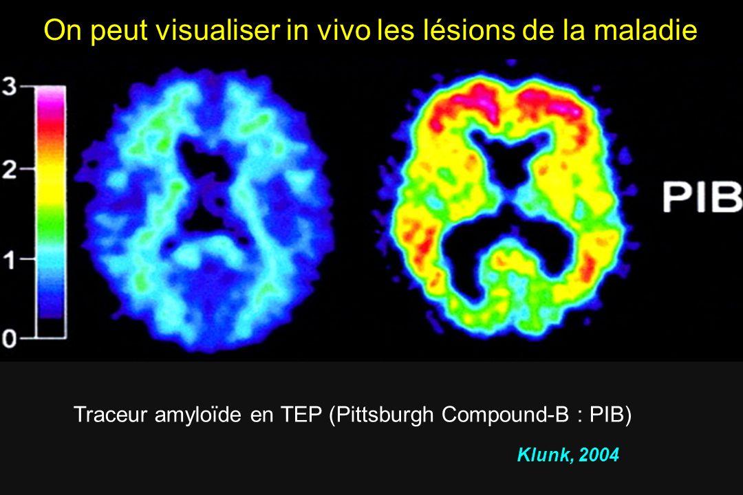 Klunk et al. 2004 Traceur amyloïde en TEP (Pittsburgh Compound-B : PIB) Klunk, 2004 On peut visualiser in vivo les lésions de la maladie