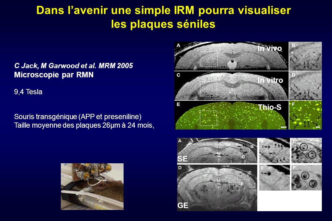 Dans lavenir une simple IRM pourra visualiser les plaques séniles C Jack, M Garwood et al. MRM 2005 Microscopie par RMN 9,4 Tesla Souris transgénique