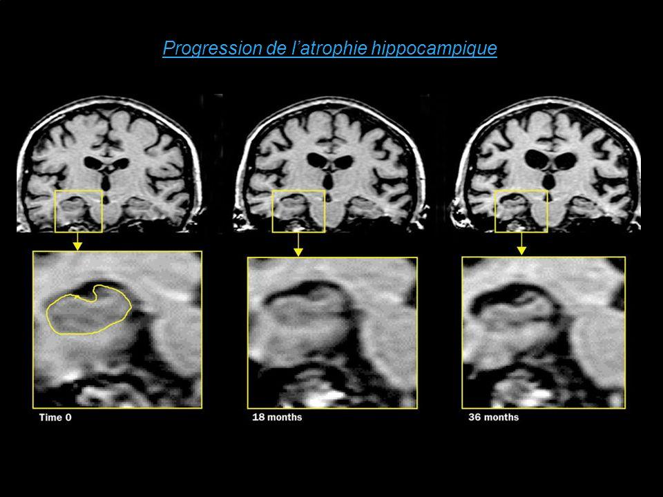 Progression de latrophie hippocampique