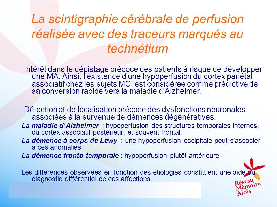 La scintigraphie cérébrale de perfusion réalisée avec des traceurs marqués au technétium -Intérêt dans le dépistage précoce des patients à risque de d