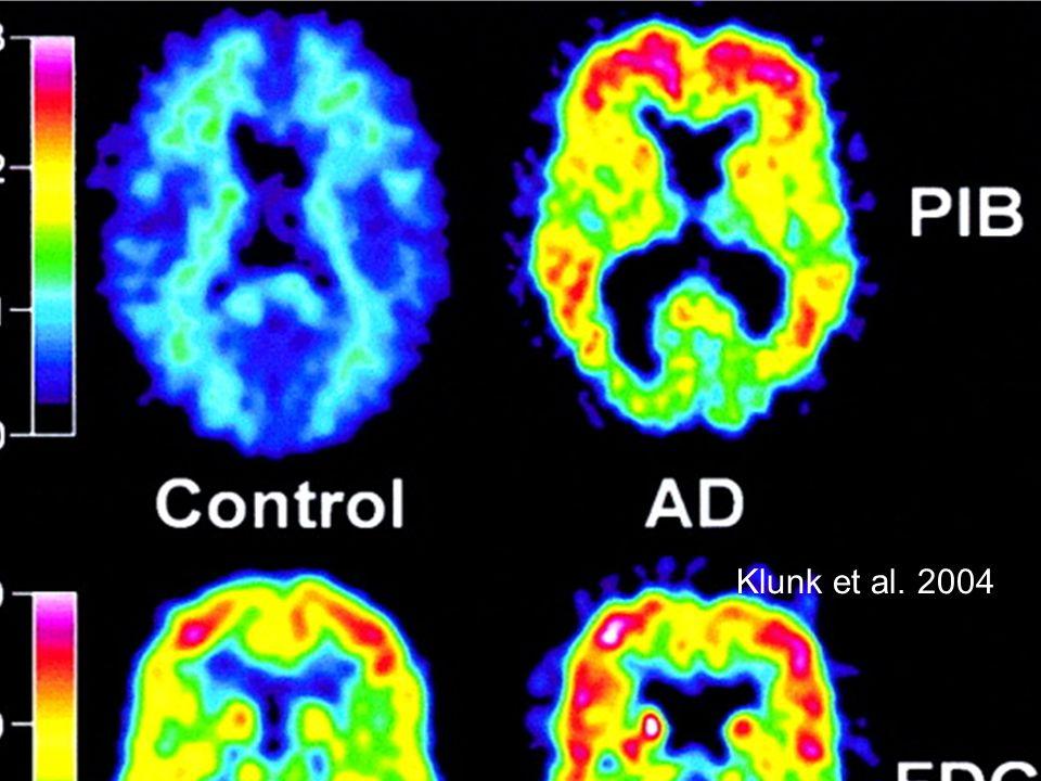 Klunk et al. 2004 On peut visualiser in vivo les lésions de la maladie Traceur amyloïde en TEP (Pittsburgh Compound-B : PIB)