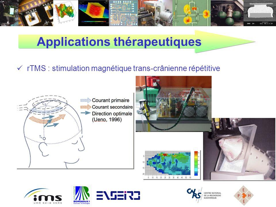 Applications thérapeutiques rTMS : stimulation magnétique trans-crânienne répétitive